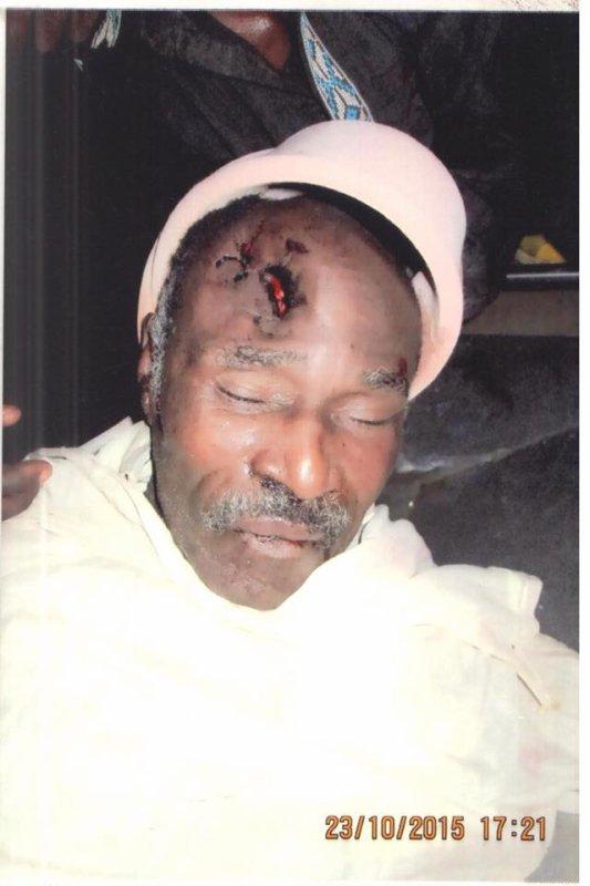 Photos du corps du Gardien d'Abraham le grand frère de Katumbi abattu par la milice de Kabila