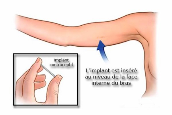 Retrait de l'implant contraceptif