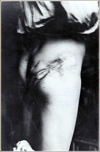 Les experiences medicales dans les camps Nazi: L'horreur!