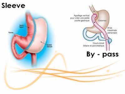 La sleeve gastrectomie en quelque mots