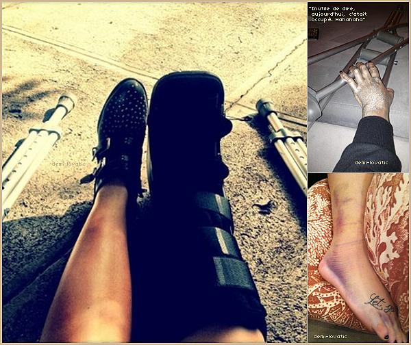 . Demi Lovato : victime d'un petit accident .