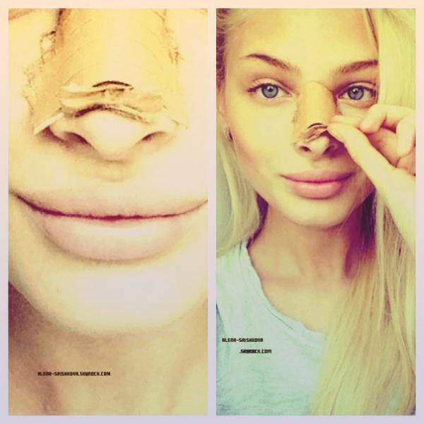 10/01/13 : Alena s'est fait refaire le nez, découvrez les photos.