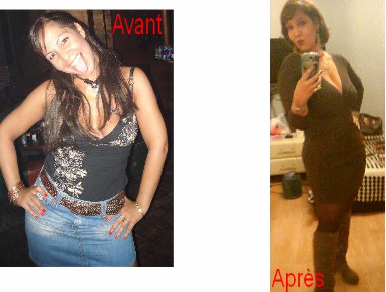 Avant/après