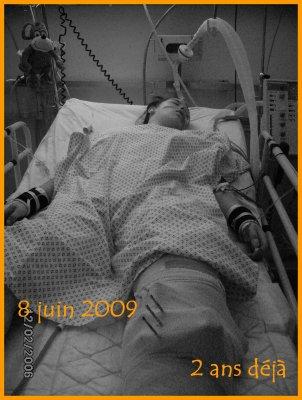 Amputée à 15 ans: 2 ans & quelques jours