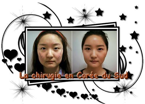 ♥  La Chirurgie en Corée du Sud  ♥  Merci à M-omusu.sky' pour l'idée de l'article ^0^