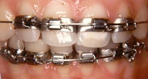 Types de bagues dentaires
