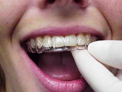 Bagues dents qui bougent