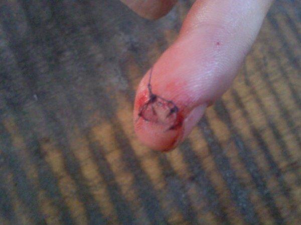 Mes deux points de suture le 14 août 2012