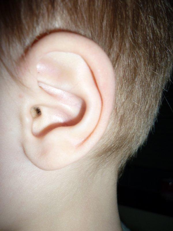 A ki appartient l oreille???