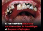 Un conseil pour les dents cariller