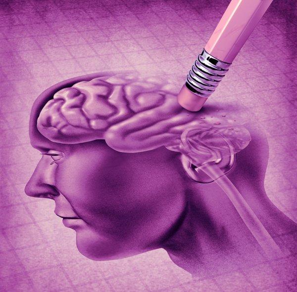 Protégez votre cerveau de la maladie d'Alzheimer