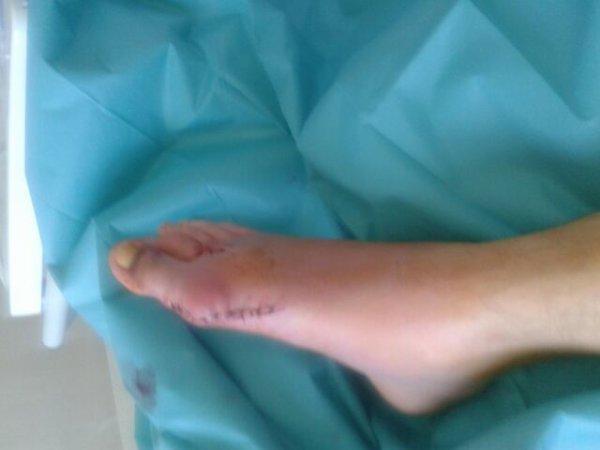 Mn pieds apres loperation
