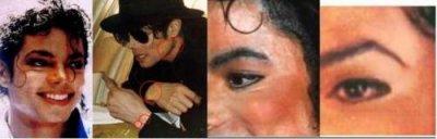 0e208a14e العالم كله أصبح يعلم أن مايكل مصاب بمرض جلدي اسمه ( البهاق ) ، (Vitiligo )  ، و لكن ظهر من قال أن مايكل اختلق هذا العذر في مقابلته مع الأعلامية الشهيره  ...