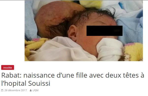 """nouveau-né à deux tètes """"rabat Maroc"""""""