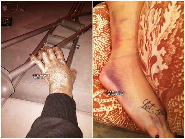 *   « Inutile de le préciser, aujourd'hui fut mouvementé. Hahahaha » - Demi Lovato via Twitter. (28/01)    Ce jour-là, Demi a réalisé un photoshoot - d'où sa main pleine de paillettes - et s'est cassée le péroné (os de la jambe).   *