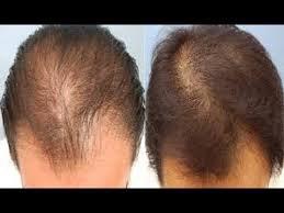 Une Cure Pour La Calvitie homme/femme .Premier Produit de Repousse Capillaire