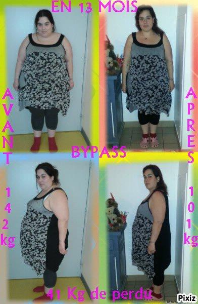 bypasser depuis le 18 mars 2013 me voici 41 kg en moins
