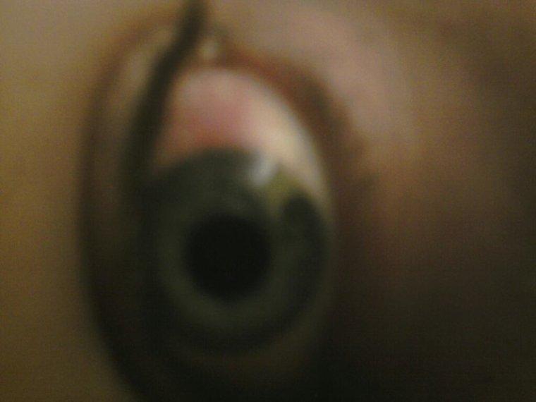 Mon oeil sa s'agrave :s