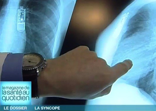 51   Syncope et lipothymie