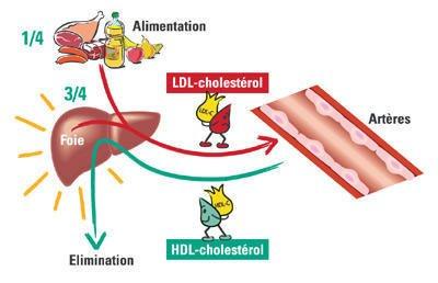 52   Dyslipidémie (Cholestérol)