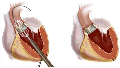 56   Pathologies de la valve aortique