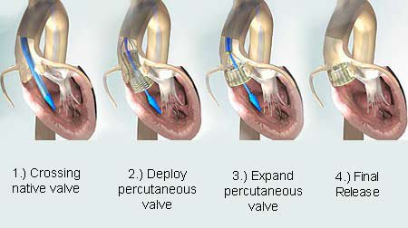 58   Implantation d'endoprothèse valvulaire aortique (TAVI)