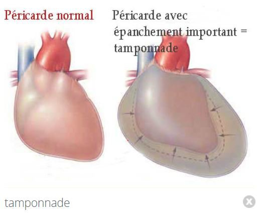 78   Péricardite .Myocardite .Endocardite.