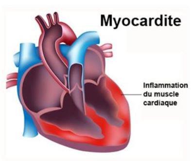 81   Myocardite