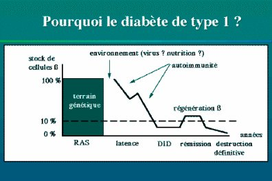 Le diabète de type 1 ou diabète insulinodépendant