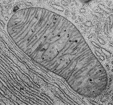 Diabète secondaire (2/3) : Les diabètes mitochondriale
