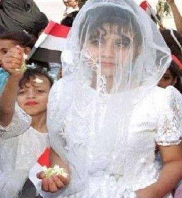 Yemen, morta sposa-bambina dopo le nozze per emorragia