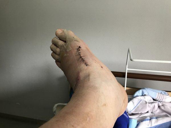 depuis le 08 Avril 2018 en convalescence suite opération pied gauche