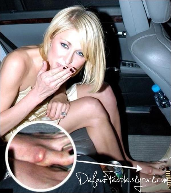 """ALLO MAMAN BOBO ! * Évènement planètaire, Paris Hilton s'est fait une affreuse """"ampoule"""" au pied   :oMais OUI tu as raison de faire cette tête maintenant tous le monde va savoir que tu n'es pas aussi GLAMOUR que tu ne le prétends !~> Very ugly."""