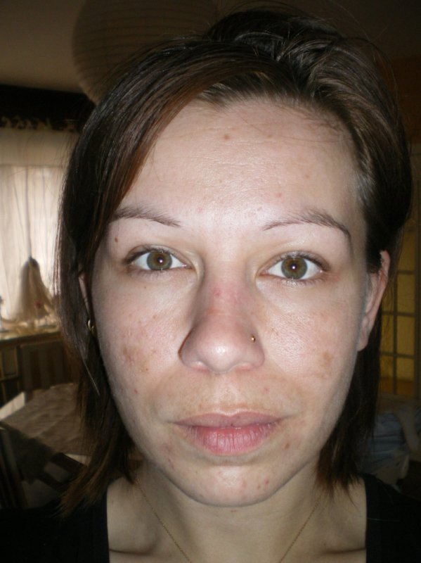 plus que de la retouche un remodelage complet du visage