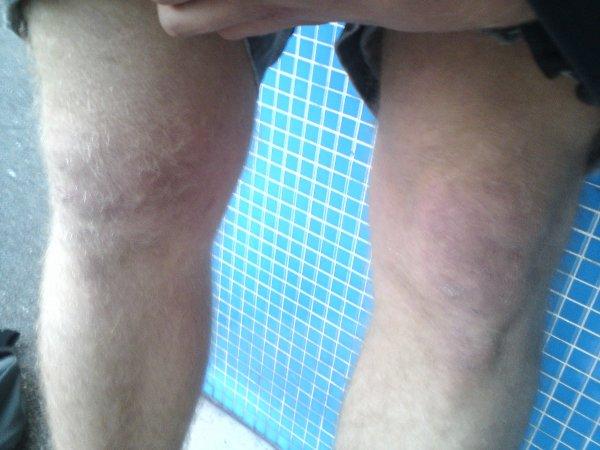 Mon genoux