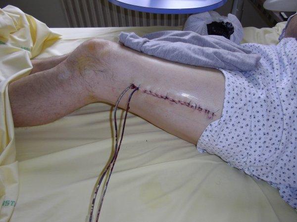 Nouvelles post op ratoire 2012 mon accident l plus for Douleur interieur cuisse droite