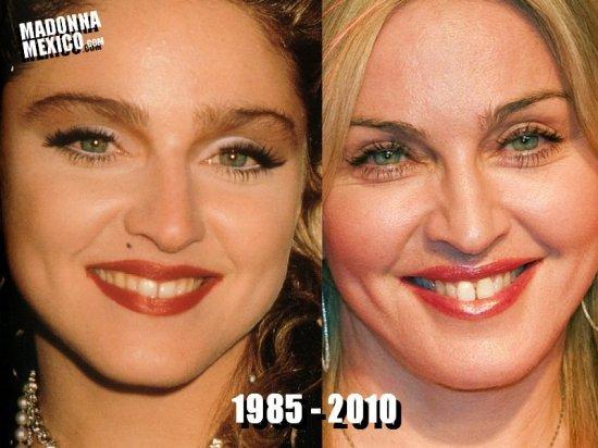 Implants mammaires, pommettes, lèvres, nez refait ... chez Madonna tout a été refait et rerefait et elle a l'air de l'assumer parfaitement.