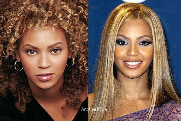 Beyoncé: Elle a notamment fait appel à un rhinoplasticien pour affiner son nez et augmenter sa poitrine pour remplir un peu plus ses décolletés tout en retouchant un peu ses pomettes. Des interventions discrètes en somme et plutôt réussies.