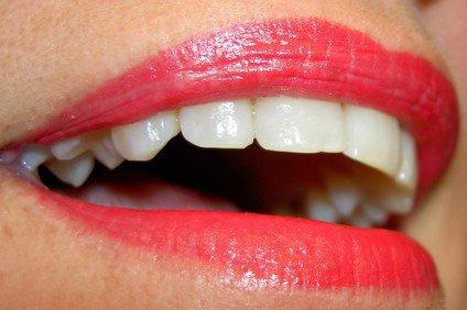 2 astuces pour avoir les dents blanches ( le retour)