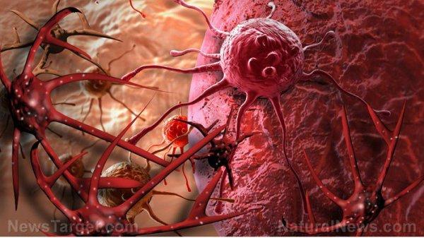 FIN DE VIE SUR TERRE ORGANISEE : Bombe médicale : La chimiothérapie dissémine le cancer dans tout le corps