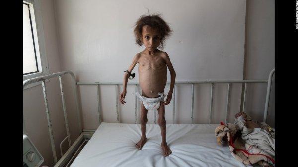 NOUVEL ORDRE MONDIAL SATANIQUE ET 3 GUERRE MONDIAL EN MARCHE : Selon l'ONU, 10 millions de Yéménites risquent de mourir de faim d'ici la fin de l'année