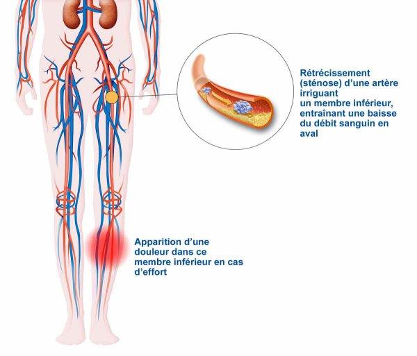 Le massage est contre-indiqué la varicosité