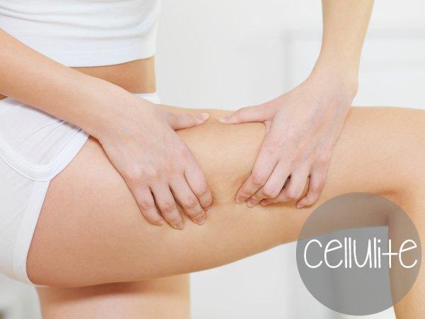 8 conseils contre la cellulite