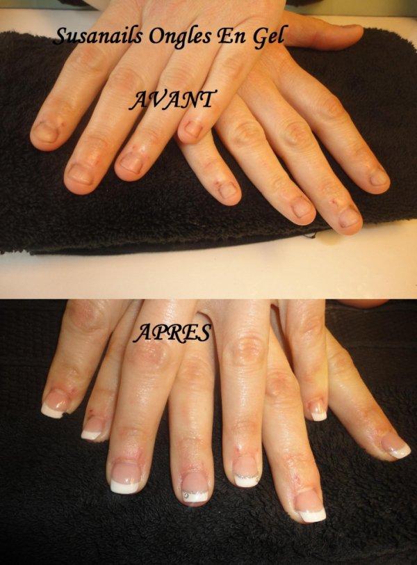 avant / apres sur ongles rongés