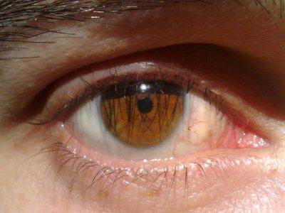 mi ojo........sin coment...!