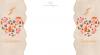 Habillage monocolonne n°245