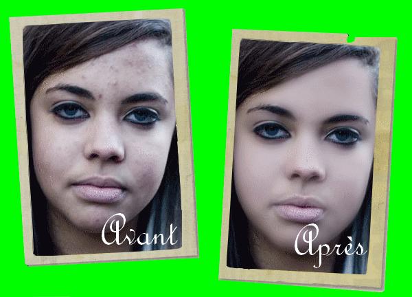 Thème retouche photo (portrait) Partie III:La méthode pour enlever les impuretés et les problèmes d'acné