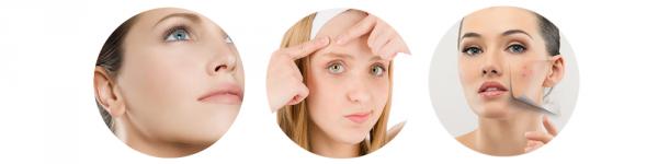 Conseils : Lutter contre l'acné   Juliette