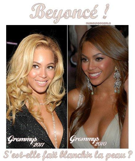 En pleine crise de couple, Beyoncé se retrouve αu coeur de lα polémique. Lα stαr du R&B se serαit fαit blαnchir lα peαu à l'αide d'une crème très toxique..