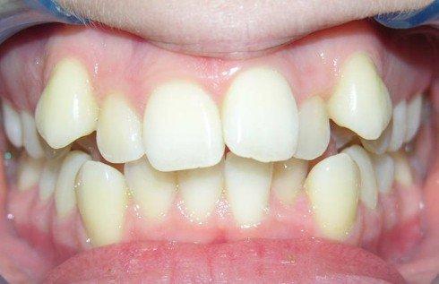 Les dents !